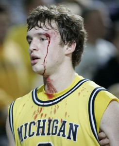 Zack Novak Bloody